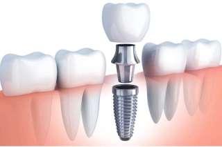 Dental Implant educational Image
