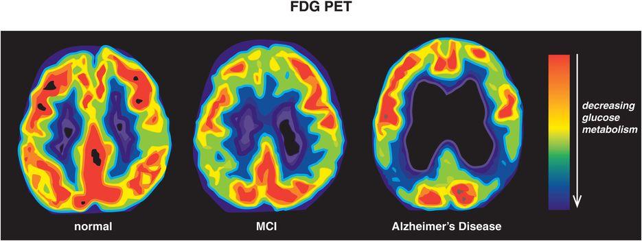 Bệnh Alzheimer's