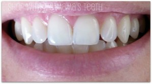Crest 3D 2-Hour Express Whitestrips