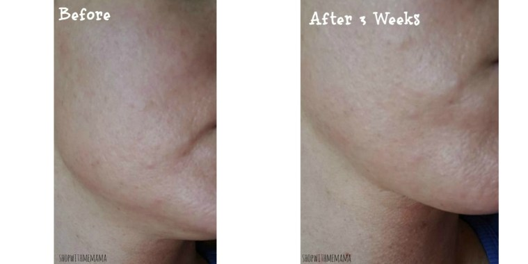 Skincare Laser before and after photos