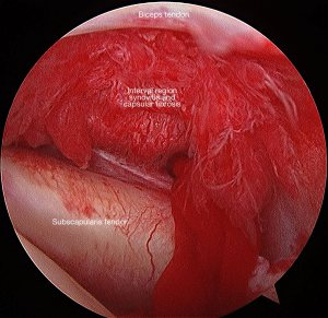 Arthroscopy in a patient with frozen shoulder