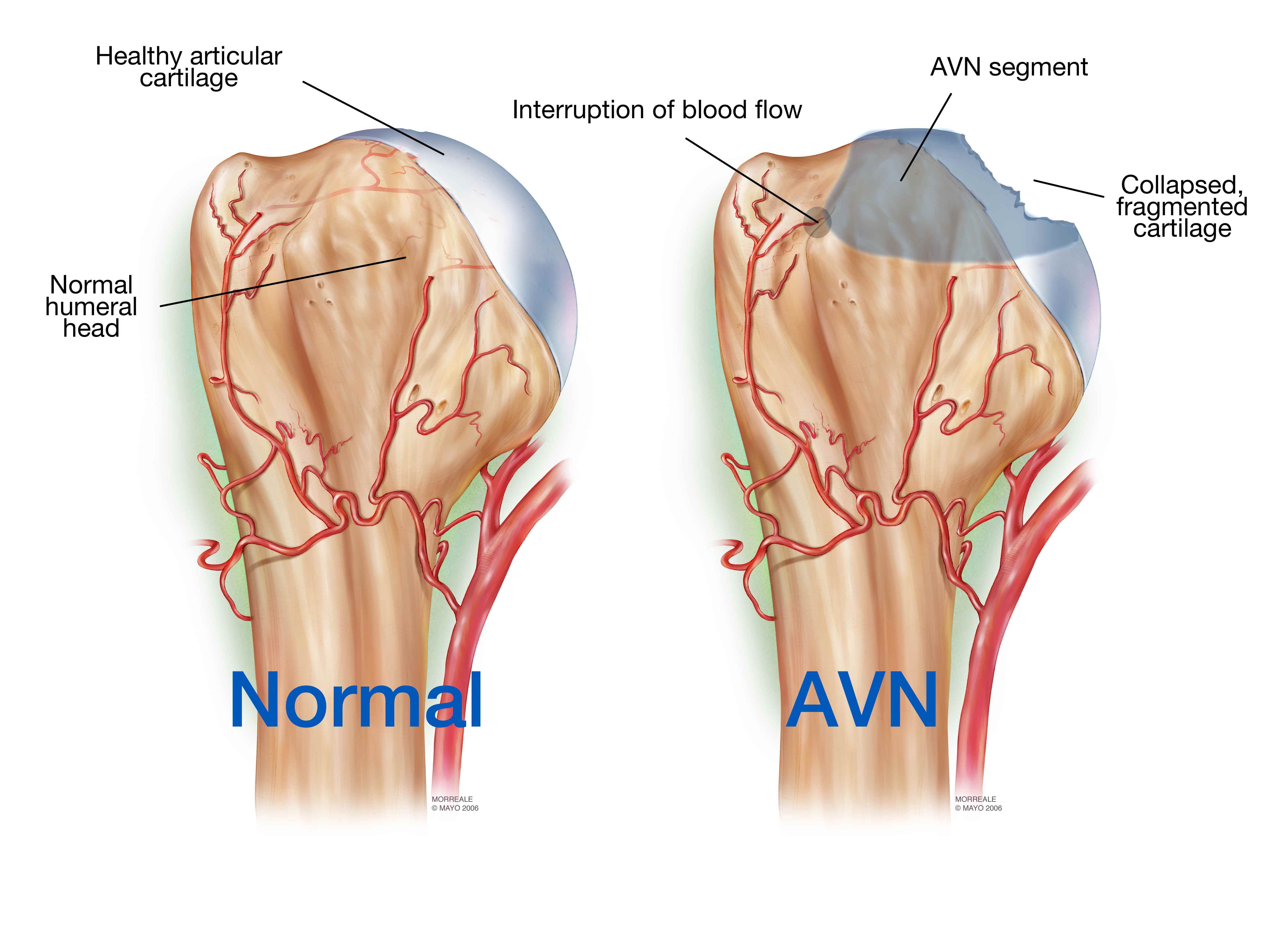 Avascular Necrosis When The Shoulder Humeral Head Suffers A Stroke