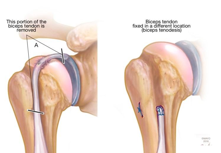 My Shoulder Superior Labrum is Torn: Do I Need Surgery? - Shoulder ...