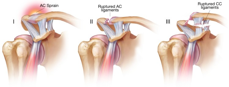 variouos-types-of-ac-joint-injury