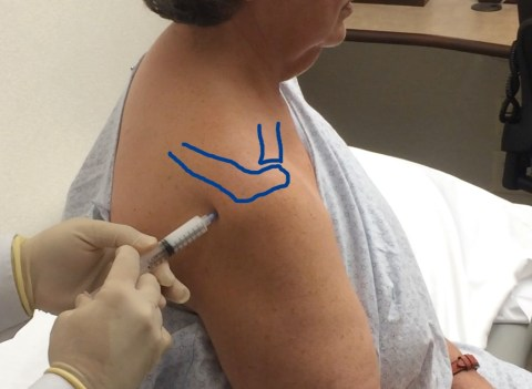 injection-of-corticosteroids-in-the-subacromial-space