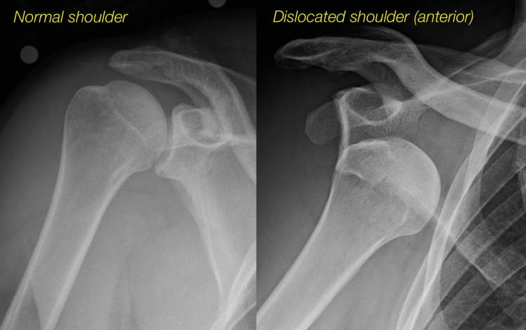 radiographs-of-a-normal-and-dislocated-shoulder