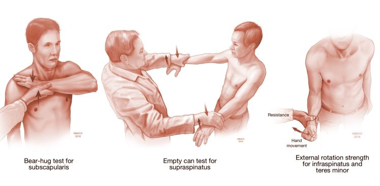 Testing of shoulder strength may identify tears of the rotator cuff.jpg