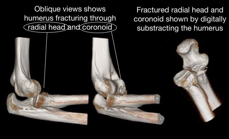 3D CT Terrible triad.jpg
