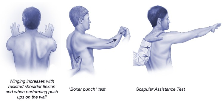 Physical exam serratus anterior