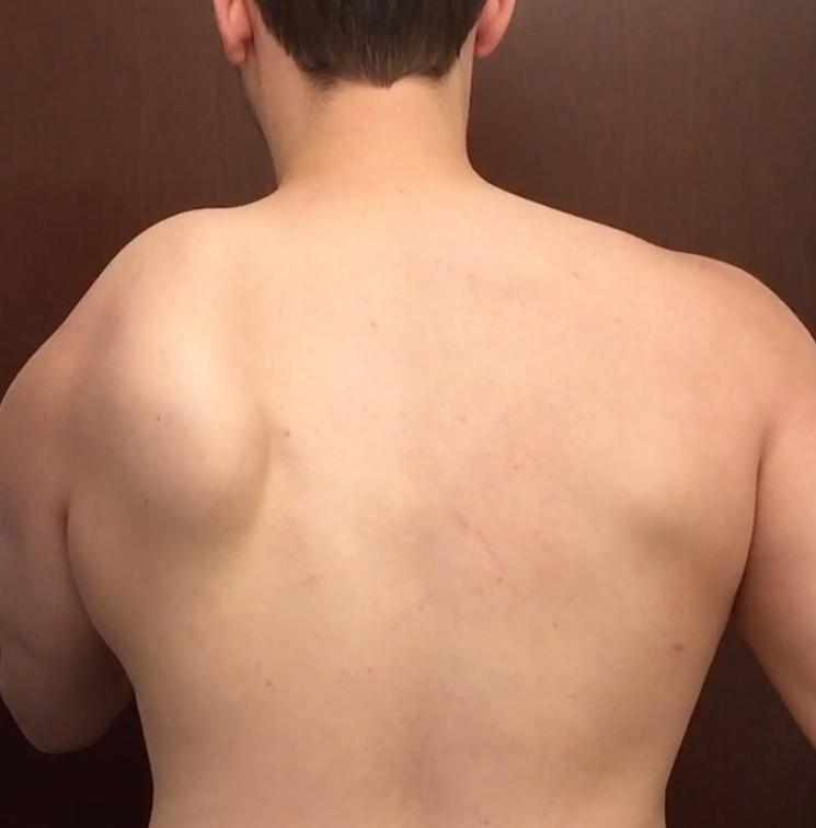 pierde gras serratus anterior)