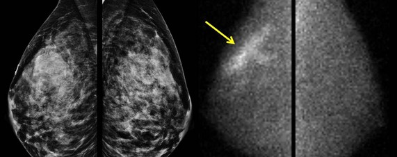 A 7 cm breast cancer was obscured on the mammogram, left, but became visible with a technology called molecular breast imaging, right; arrow.
