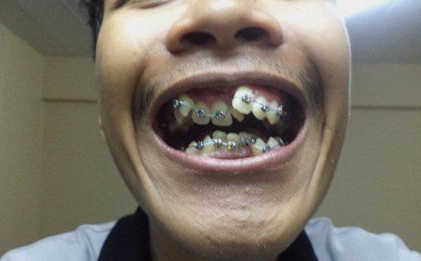 หนุ่มโพสต์สภาพฟันตัวเอง ไม่คิดว่าจะเข้าที่ได้.jpg