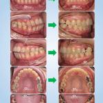 ฟันสบเปิด ฟันห่าง ฟันยื่น