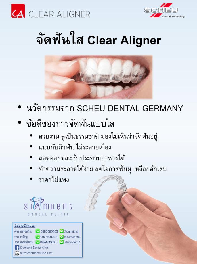 09 จัดฟันใส clear aligner