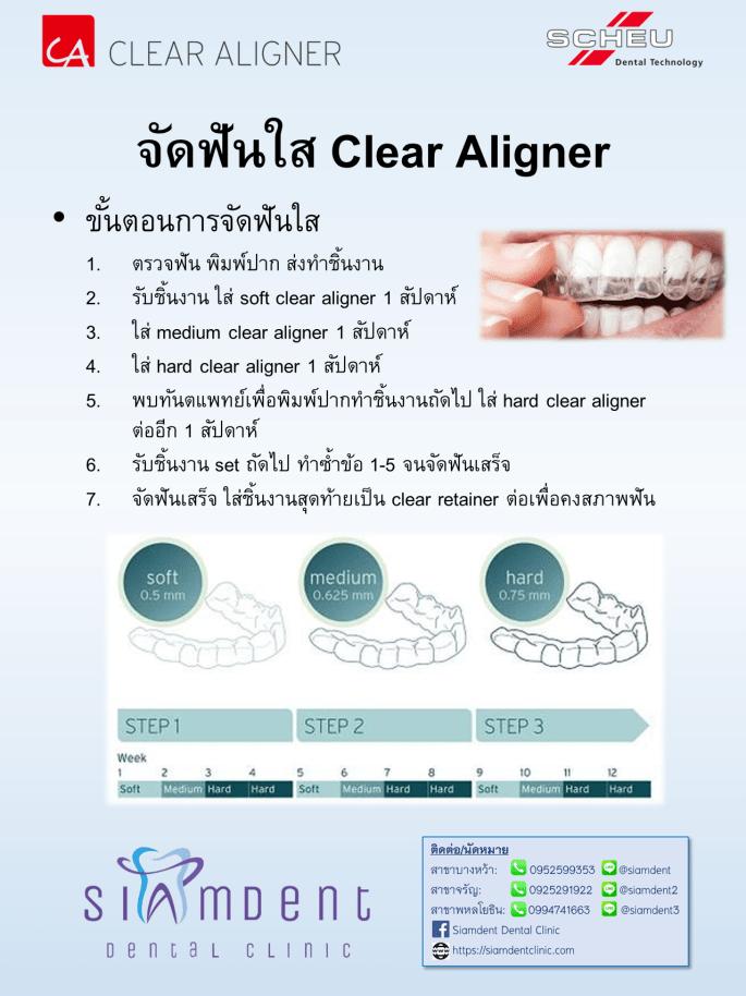 10 ขั้นตอนจัดฟันใส clear aligner
