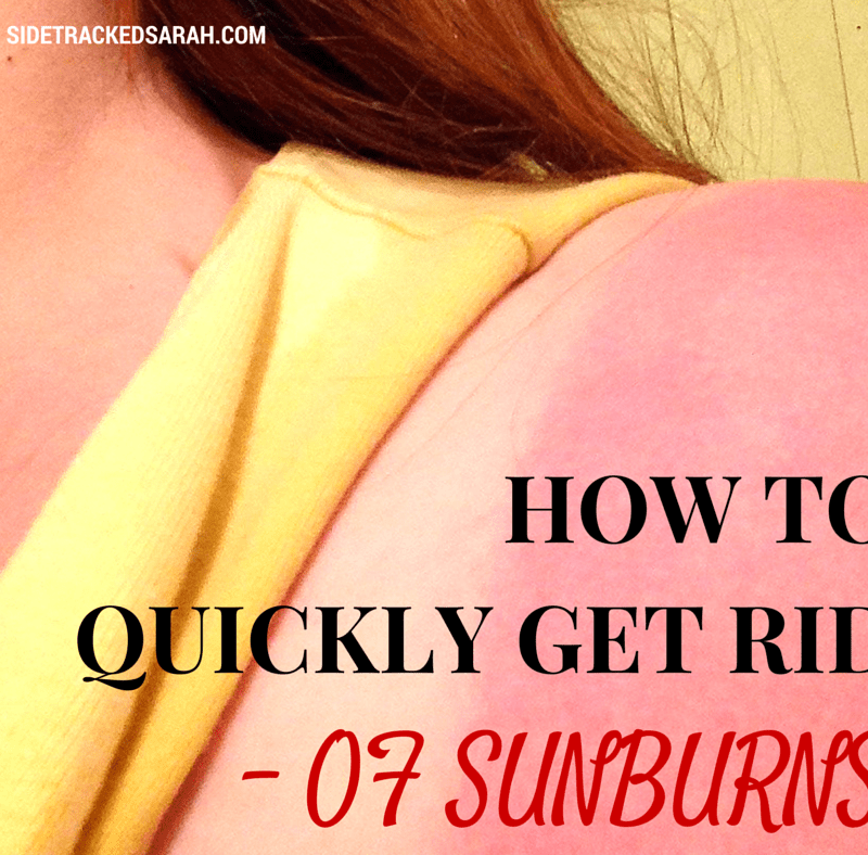 How to Quickly Reduce a Bad Sunburn ++ a Schlitterbahn GIVEAWAY!!