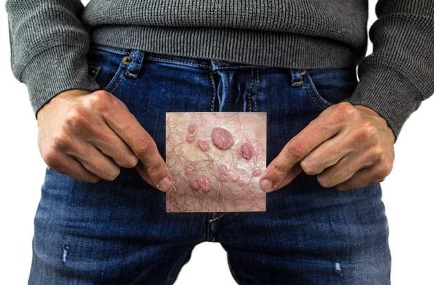 Doctor for Genital Warts in delhi