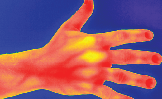 Bloodflow of the hand seen in thermal imaging