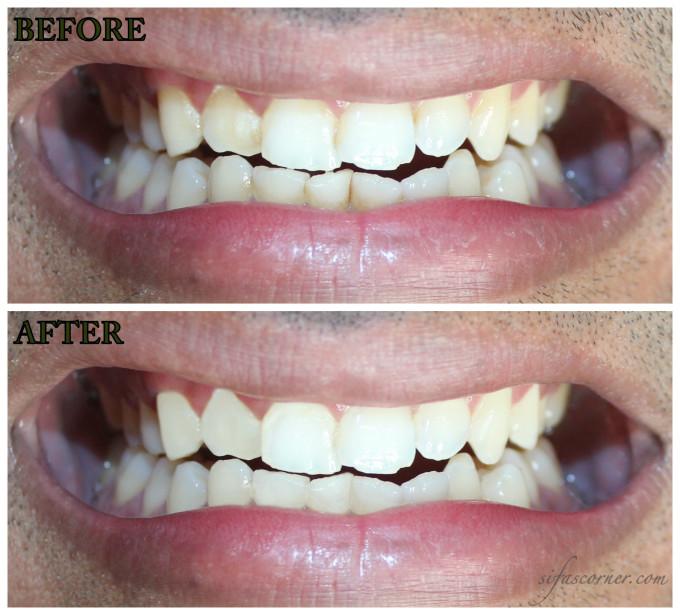 teeth Collage