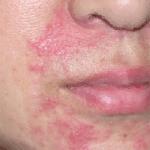 ステロイドとは?アトピー性皮膚炎にステロイド薬の効果は?副作用を調査!