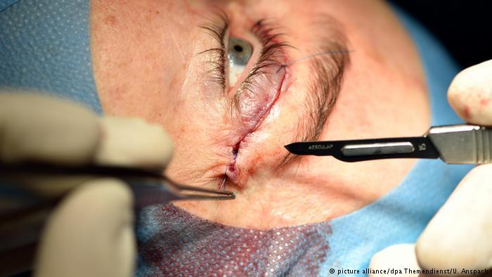 علاج جيني لنوع نادر من العمى!