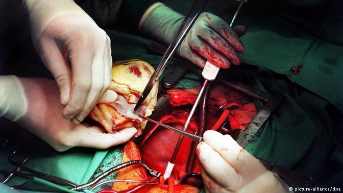 القلب والشرايين- عملية القلب المفتوح