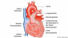القلب والشرايين- الخلايا المحفزة لنبض القلب