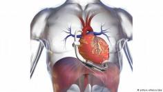 قلوب ومضخات دم اصطناعية