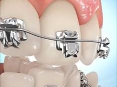 نصائح للحفاظ على نظافة الأسنان مع وجود التقويم