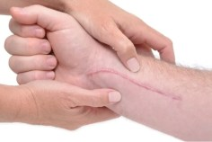 الأمراض الجلدية – هل يخلص الجلد من كل أنواع  الندوب ؟