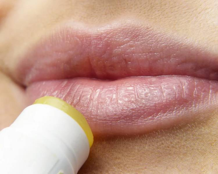 herpes sulle labbra