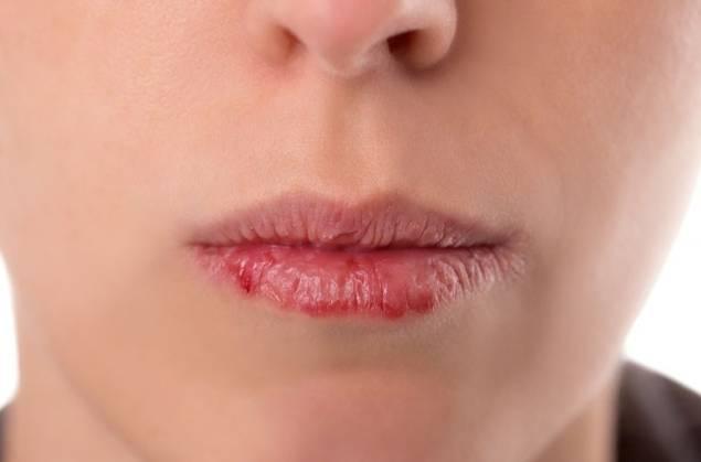 labbra screpolate e sangue