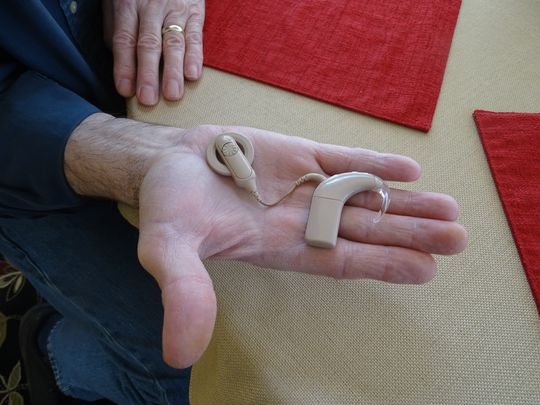 Donald Stump shows off his cochlear implant, which
