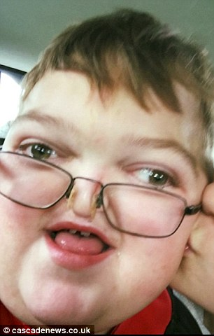 Boy, 8, has EVERY bone in his face broken to stop his brain from being squashed – and can now …