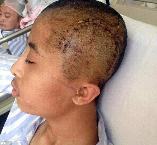 Severely injured: Ma Guorui (picture) suffered a fractured skull and hearing loss after being hit by roommate