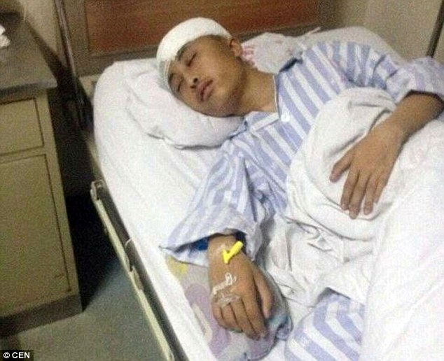 Ordeal: The 15-year-old from China claimed he had been beaten because his roommate didn't like him snoring