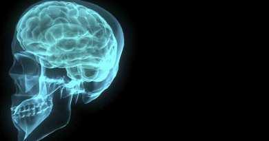 FP thinking brain