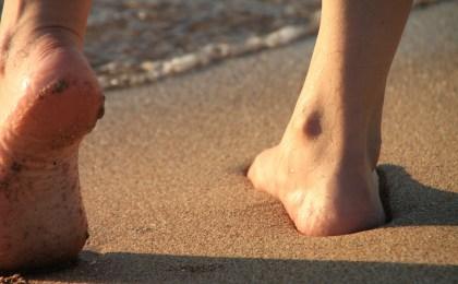 Laufen ohne Beschwerden - das ist nur möglich, wenn Fehlstellungen der Füße konsequent behandelt werden.