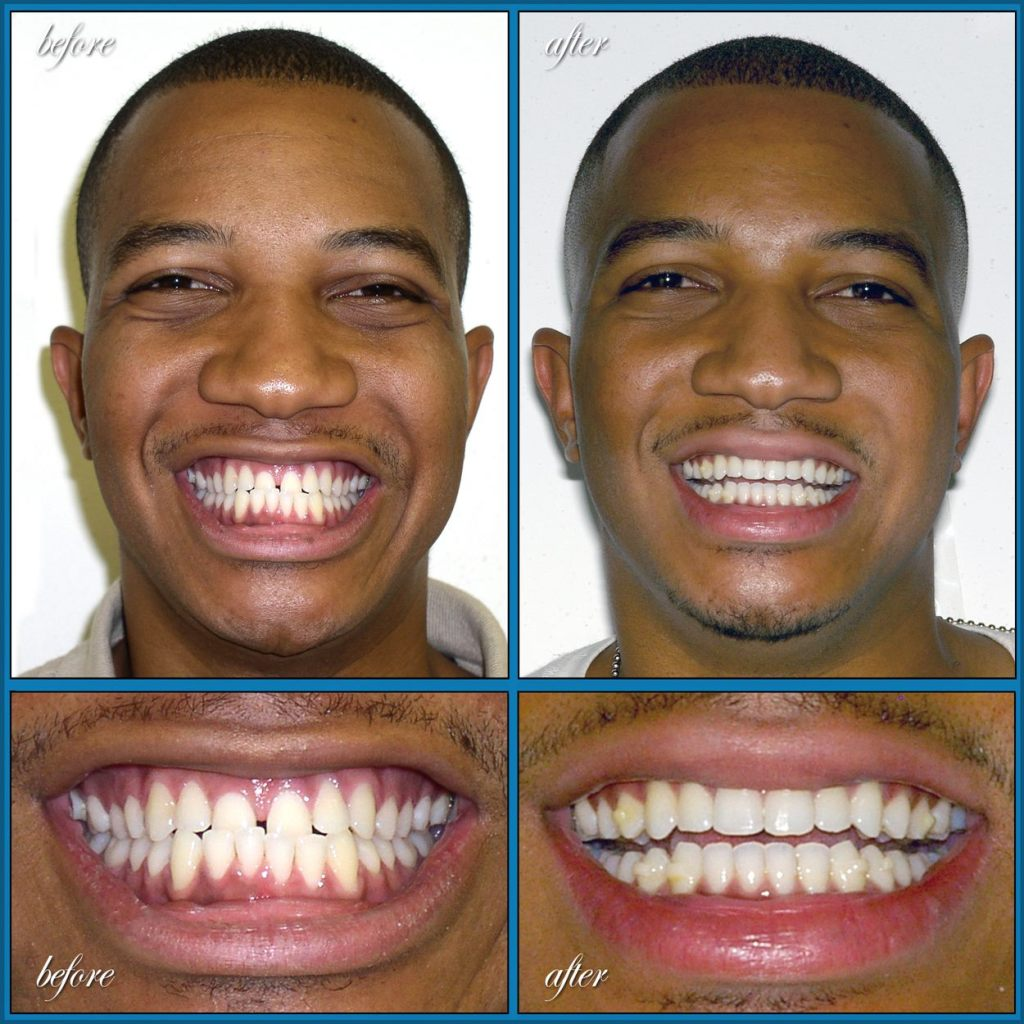 before and after Invisalign case