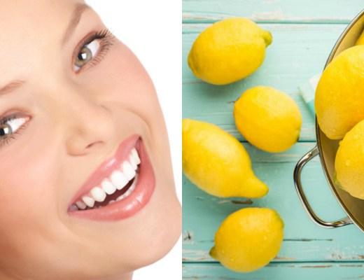 remedii naturale - dinti frumosi
