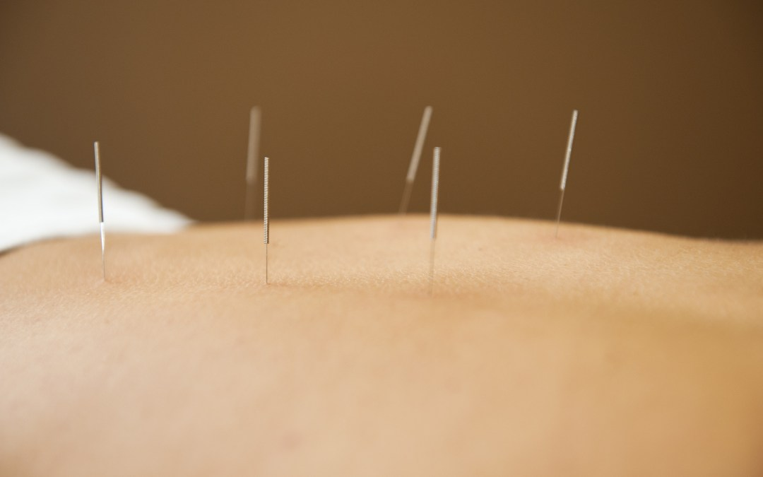 Can YOU Escape the Flu?  Acupuncture Can Help