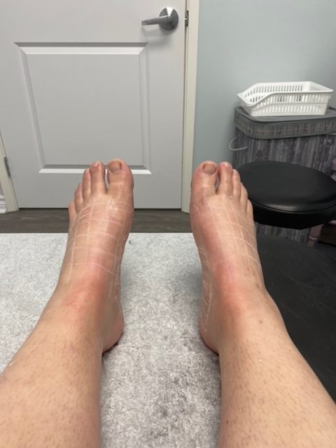 Numbing Agent Applied to Feet before Botox for Hyperhidrosis