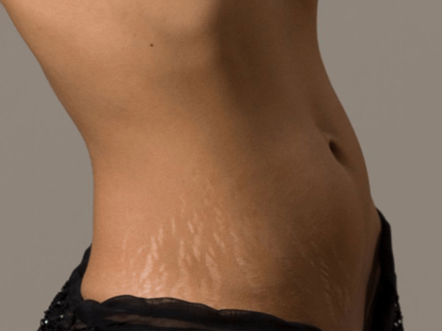 Stretch Mark Removal Creams