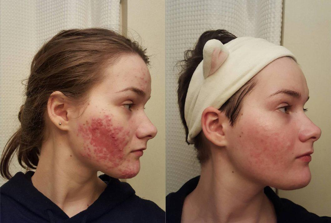 Jojoba Oil Makeup Remover Reddit | Amtmakeup co