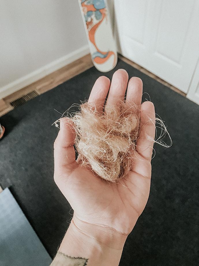 Hormonal Hair Loss and hormone imbalance