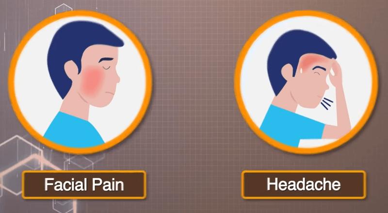 Facial pain Mucormycosis