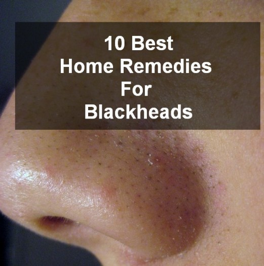 Home Remedies for the Blackheads