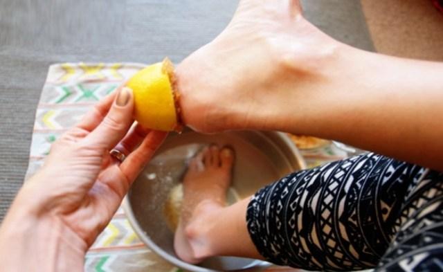 lemon juice for cracked heels