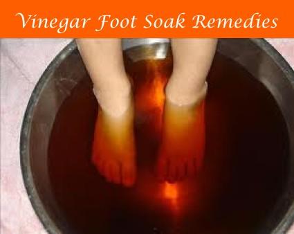 vinegar soak for cracked heels
