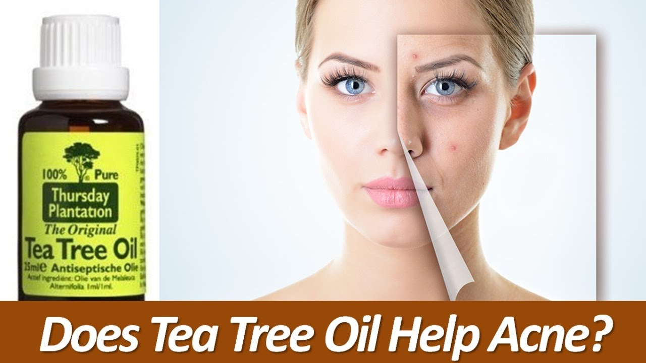 An essential oil long used in aromatherapy, tea tree oil may help to fight acne blemishes when it is diluted and applied to the skin. Derived from the leaves of the Melaleuca alternifolia tree in Australia, tea tree oil has also been used for many years to fight skin infections such as athlete's foot, dandruff, and ringworm, and wounds.